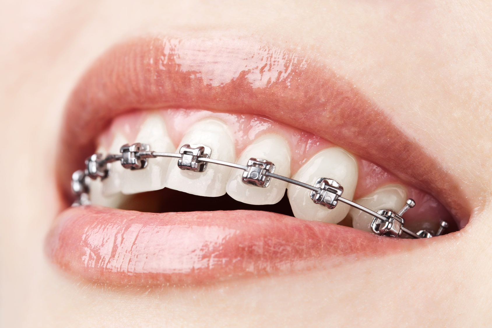 Braces can benefit people of all ages