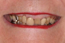 A patient before dental implants