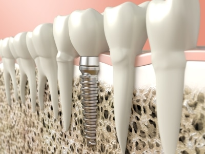Dental Implant cross section